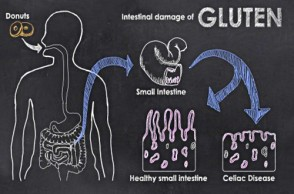 Serious Consequences of Celiac Disease
