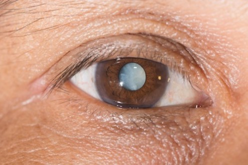 Cataracts: Symptoms & Solutions
