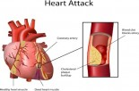 Busting the Cholesterol Myth: 4 Major Risk Factors for Heart Disease