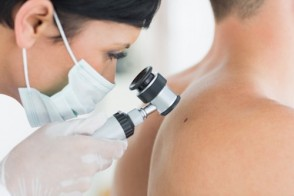 Melanoma Cancer: Prevention & Treatment