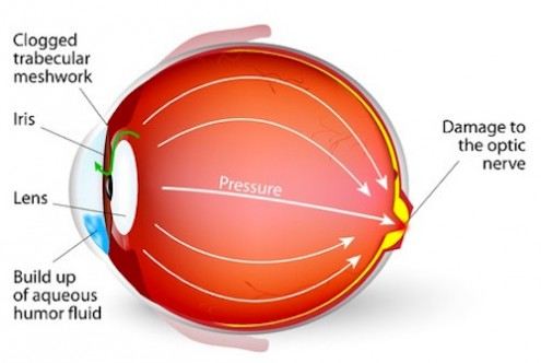 How to Effectively Control Your Glaucoma