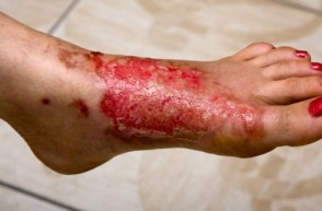 Severe Burns: Best Treatment Options
