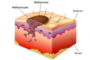 Melanoma: How to Prevent & Treat the Deadliest Skin Cancer