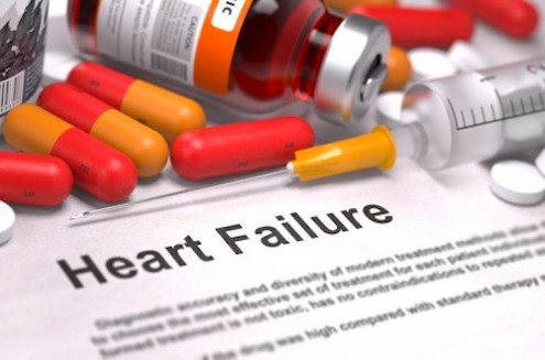Heart Failure Misconceptions