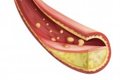 New Guidelines on Cholesterol: Part 1