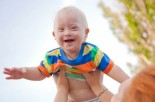 Down Syndrome: What New Parents Need to Know