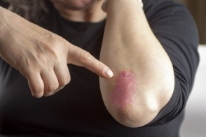 Nature's Secrets: 5 Steps to Ease Eczema