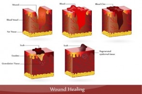 Ask Dr. Mike: How Can I Speed Up Wound Healing?
