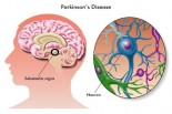 New Treatments for Parkinson's Disease
