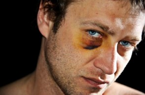 Severe Facial Lacerations & Other Injuries