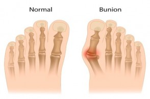 Battling Bunions: What REALLY Happens During Surgery