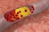 Finally, the Cholesterol Myth Is Being Validated