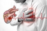 Coronary Heart Disease Myths & Facts