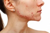 Accutane: The Miracle Acne Drug?