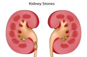 Painful Truth About Kidney Stones