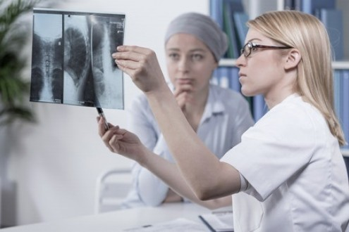 Estrogen's Impact on Lung Cancer in Women