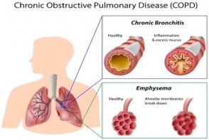 Stem Cell Therapies Help Treat COPD