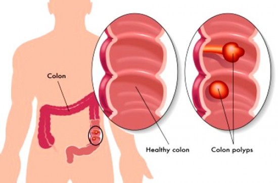 Colon Cancer Screening: It Could Save Your Life