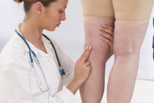 Varicose Veins: Health Impact & Treatment Options