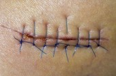 First Aid Kit or ER? Determining if a Cut Needs Stitches