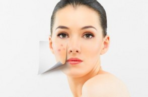 Clearing Up the Mystery of Adult Acne