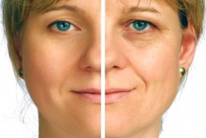 Facelift Facts: What to Know Before You Go Under the Knife