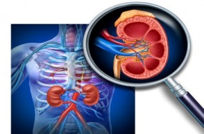 Prevent Kidney Disease