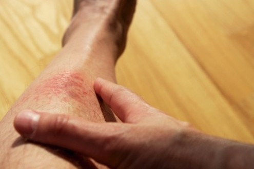 What Causes Eczema?