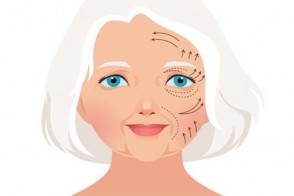 Aesthetic Surgery for Women 60 & Older: What's the Risk?