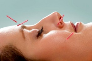 Pinpointing Cosmetic Acupuncture