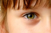 Eye Health: Your Child's Eyes Need Your Attention
