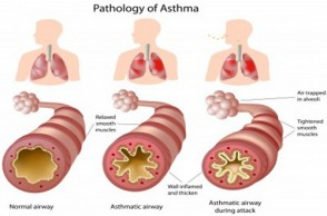 Get Smart About Asthma and Inflammation