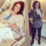 stacey-s-story-gastric-bypass