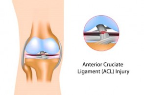 What is the Truth About Your ACL?