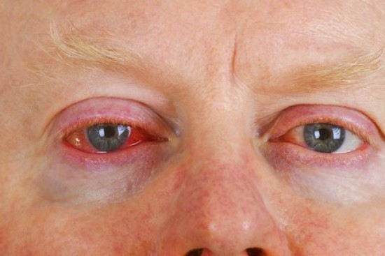 Itchy, Irritated Eyes? It Could Be Pinkeye