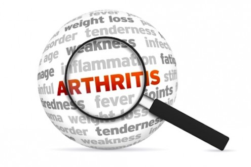 Complementary Therapy for Arthritis