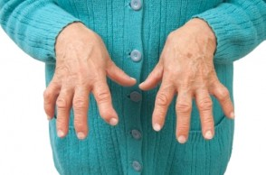 Healthy Aging: Arthritis Awareness Month