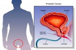 New Diagnostic Tests for Prostate Cancer