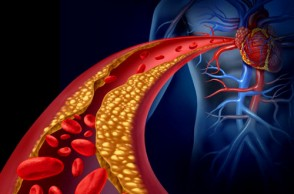 Cholesterol & Heart Disease: What Is the Real Connection?