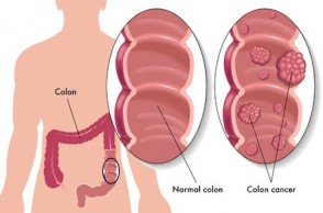 Healthy Aging: Colon Cancer